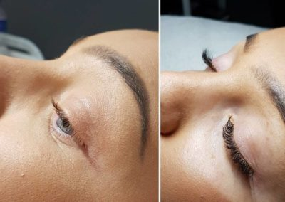 23755974 10214510669142835 948776971 n 400x284 - Russian Lash Extentions / LVL Lash Lift