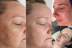Mini Pigmentation Redness Before After 300x201 - Pigmentation-Redness-Before-After