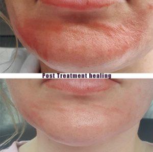 Mini Post Treatment Healing 0 300x298 - Post Treatment Healing
