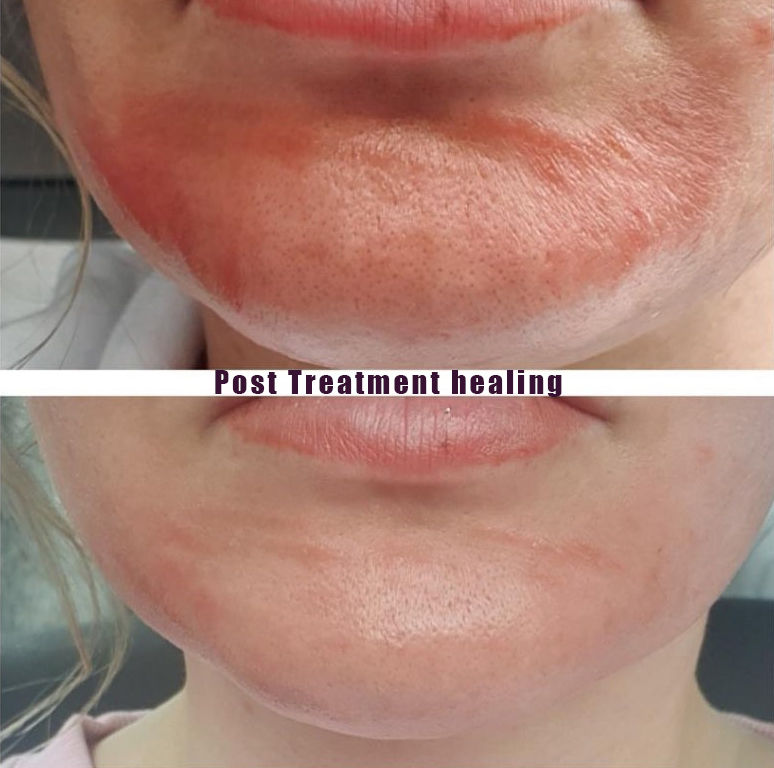 Mini Post Treatment Healing 0 - DERMALUX FLEX LED PHOTOTHERAPY