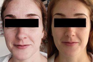 Mini Rejuvenation Before After 300x201 - Rejuvenation-Before-After