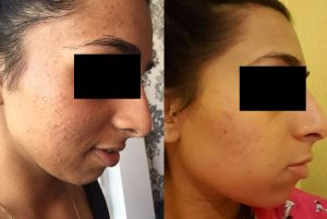 Mini Spot Prone Before After 300x201 - Spot Prone Before-After